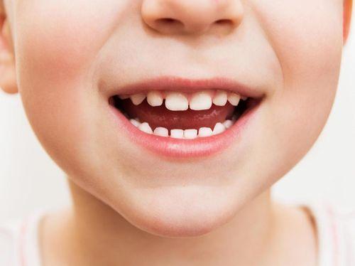 Kata Dokter, Ini Kesalahan Orang Tua Paling Fatal Soal Merawat Gigi Anak