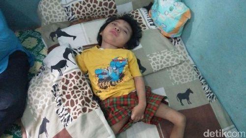 Kisah Fahry, Balita Asal Cilegon yang Kena Radang Otak dan Gizi Buruk