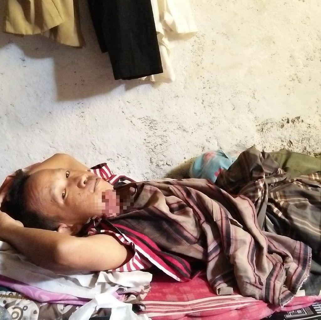 Fathurohmat, Pengidap Tumor Ganas di Cilegon Butuh Bantuan