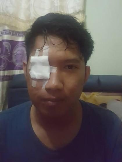 Cerita Viral Pria yang Matanya Kena Bara Rokok Saat Bermotor