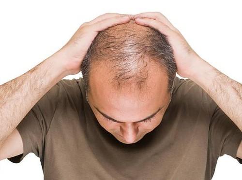 Kebotakan Bikin Stres? Ini Tips Cerdas Memilih Produk Penumbuh Rambut