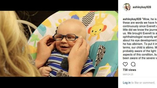 Ekspresi Bocah Albino dengan Penyakit Langka Saat Pertama Kali Bisa Lihat Ibunya