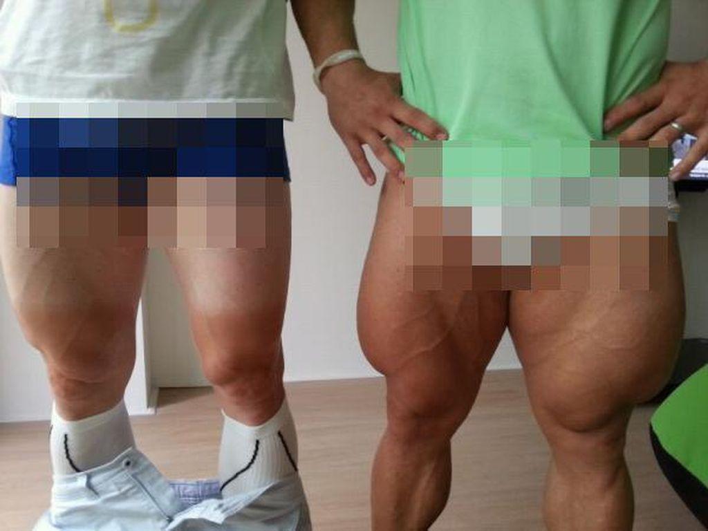 Foto-foto Penampakan Kaki Berurat Akibat Olahraga Berat