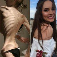 Penyandang gangguan makan anorexia nervosa atau anoreksia biasanya menolak untuk mempertahankan berat badan normal dan cenderung selalu ingin lebih kurus. Alhasil, banyak orang yang jadi kerangka hidup. (Foto: Instagram/ale180grados)