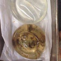 Implan payudara pasien yang ditumbuhi oleh jamur, hiii. (Foto: Instagram/breast_implant_awareness)
