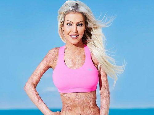 Ini Dana, Korban Pembakaran Hidup-hidup yang Kini Jadi Motivator