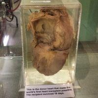 Ini adalah jantung manusia yang diawetkan di Museum Jantung Cape Town. Menurut keterangan jantung ini adalah jantung yang dipakai dalam operasi translantasi pertama di dunia dan mampu membuat penerimanya bisa bertahan hidup hingga 18 hari. (Foto: Instagram/nuesschen_2)