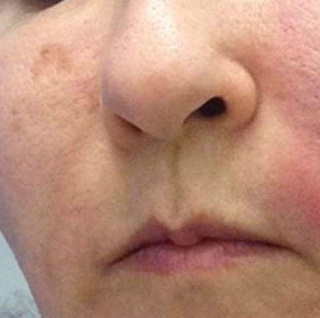 Coba Facial Vampir, Wajah Wanita Ini Malah Bengkak Kena Infeksi