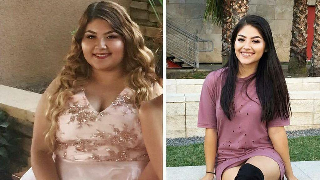 Potret Transformasi Ekstrem Para Wanita Cantik yang Sukses Kuruskan Badan
